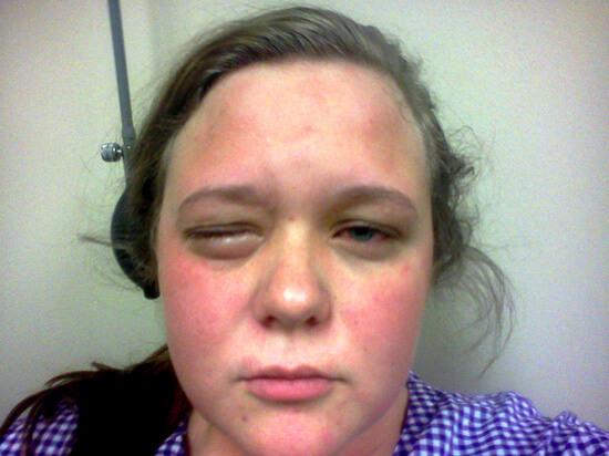 Аллергия на антибиотики более вероятна для взрослых пациентов.