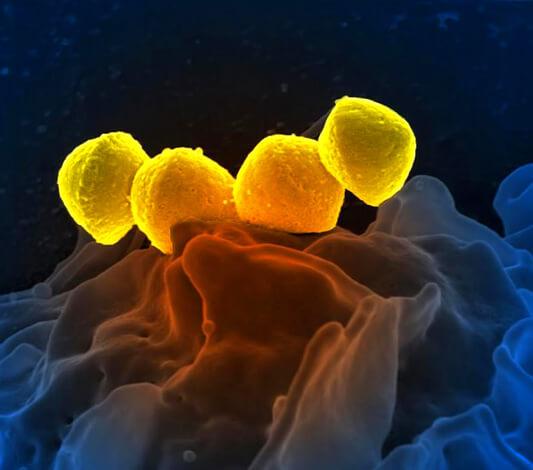Четыре клетки гемолитического стрептококка на питательной среде.