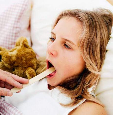 Вирусная ангина - это народное название боли в горле при ОРВИ. Если ребенок боли не чувствует, вирусной ангины у него нет.