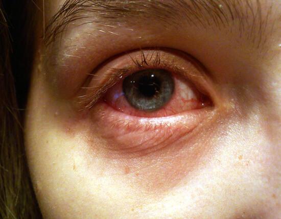 У детей конъюнктивит при герпангине развивается особенно часто.