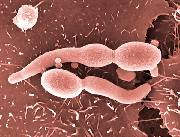 Этот грибок легко отличается от бактерий при микробиологическом исследовании мазка из зева у больного.
