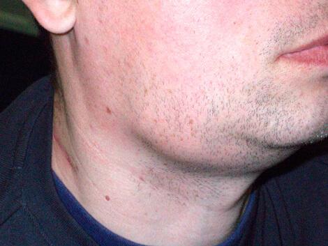 Лимфатические узлы при гнойной ангине остаются увеличенными обычно 10-12 дней.