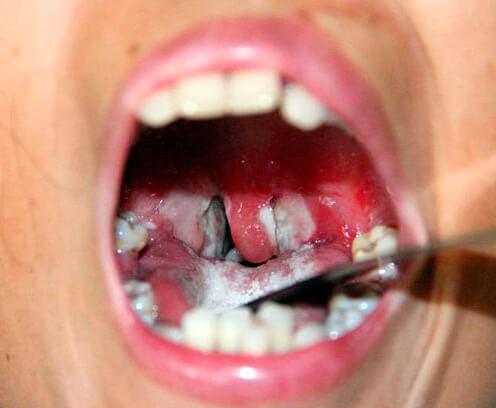 Обычно при фарингомикозах налёт густо облепляет нёбо и язык. При ангине гнойники никогда не появляются здесь.