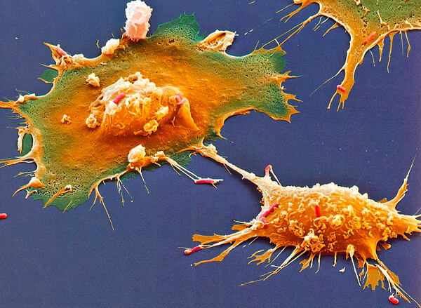 Встречаясь с вирусной частицей такая клетка поглотит и переварит её.
