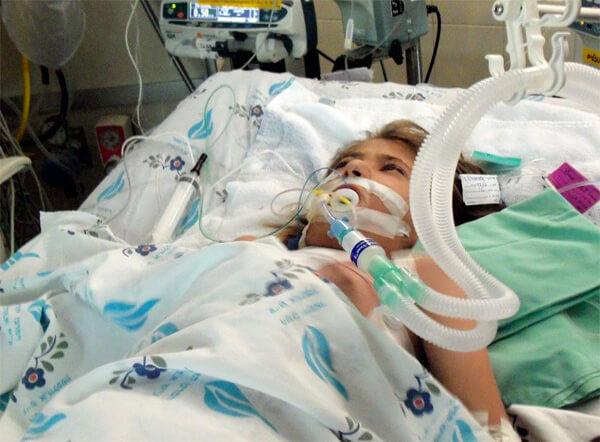 Из-за нарушений дыхания при шоке больному нужно проводить искусственную вентилацию лёгких.