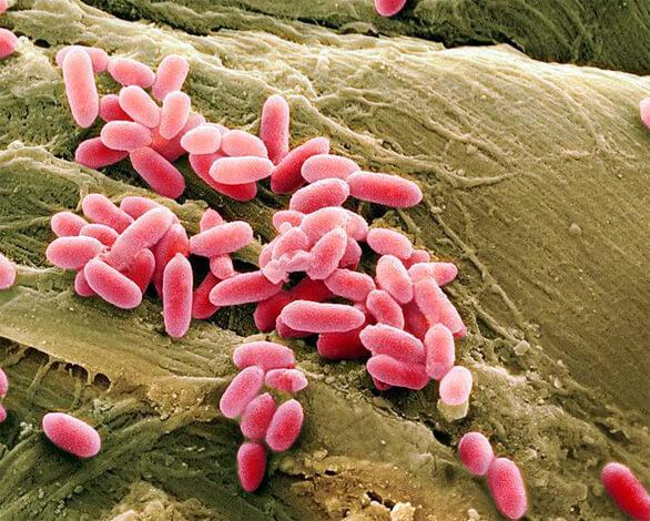 Чтобы успешно подавить инфекцию, вызванную этой бактерией, необходимо пройти бактериологическое обследование и использовать только те антибиотики, к которым она чувствительна в конкретном случае. Это занимает больше времени, чем ринит проходит сам по себе, другие же способы бороться с этой инфекцией малоэффективны.