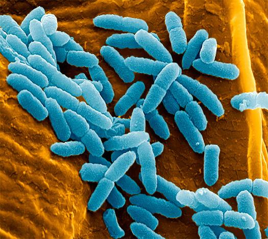 Для назначения антибиотиков при синегнонйо инфекции необходимо в первую очередь выяснить чувствительность бактерий к разным веществам. Для этого сдаются специальные анализы.