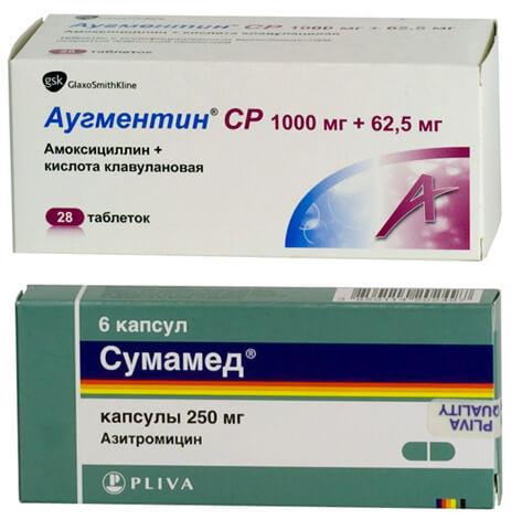 В соответствии с международными протоколами лечения, Аугментин при ангине назначается в первую очередь, и лишь если он противопоказан, вместо него применяют Сумамед.
