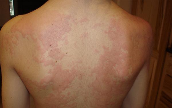 Крапивница - симптом, при котором больной должен находиться под наблюдением врача из-за риска развития анафилаксии.