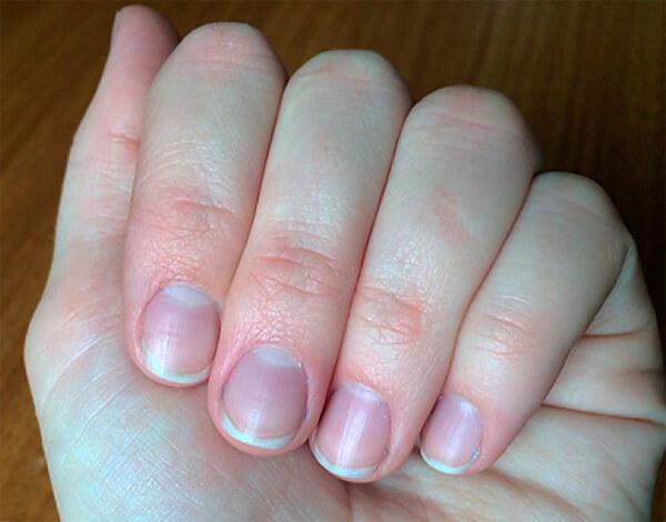 """Особенно отчетливо """"синюшность"""" кожи проявляется на лице и пальцах рук."""