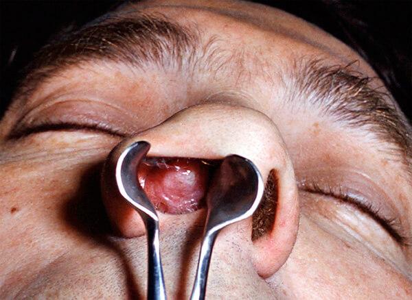 При хроническом гипертрофическом рините разрастающиеся ткани слизистой оболочки могут полностью перекрывать носовые ходы, лишая больного возможности дышать носом.