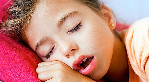 При гиперпластическом рините нос у ребенка закладывает полностью и дышать он может только ртом.
